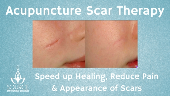 Acupuncture Scar Therapy (1)
